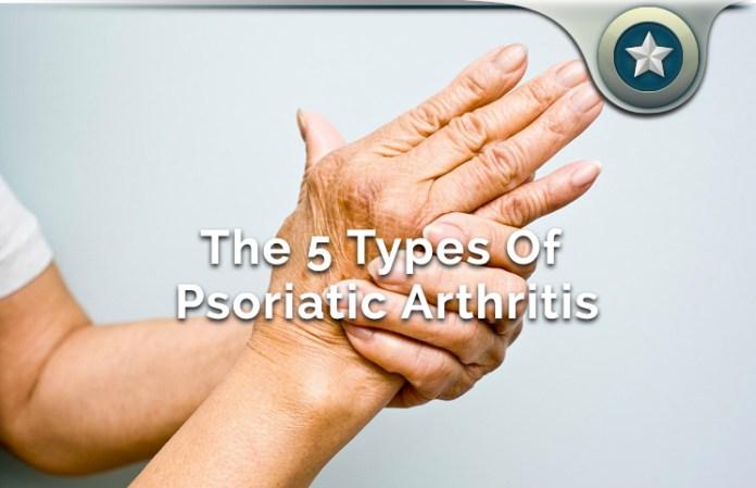 psoriatic arthritis review - types, diet, medication & natural, Skeleton