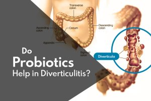 Probiotics for Diverticulitis: Do Probiotics Help Diverticulitis?
