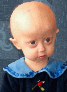 A little girl who has Progeria