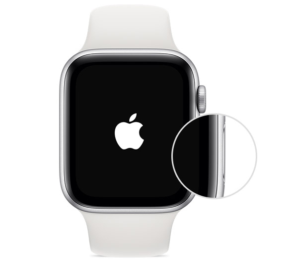 Botón lateral del AppleWatch.