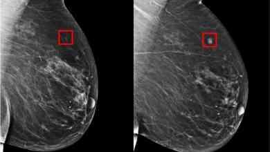 Foto de Ferramenta prevê o câncer de mama até 5 anos antes