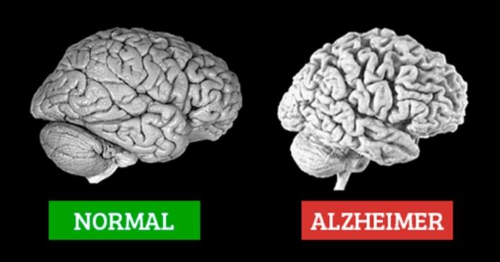 Cientistas limpam a placa de Alzheimer de ratos usando apenas luz e som 1