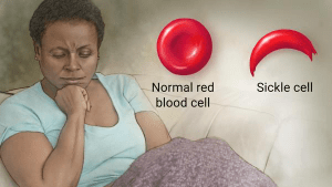 Sickle Cell Anemia Image