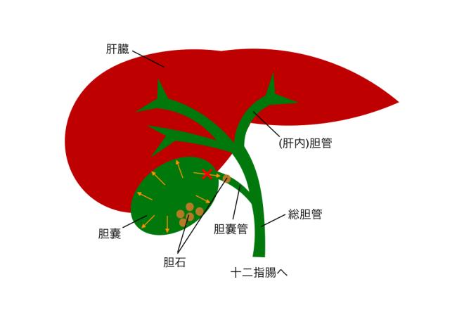 胆嚢 炎 ガイドライン 急性