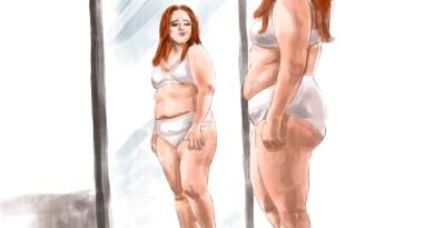 бандажирование желудка