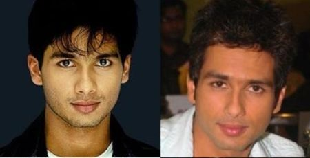 Top 8 Bollywood Actors Who Had Plastic Surgery Photos Inside