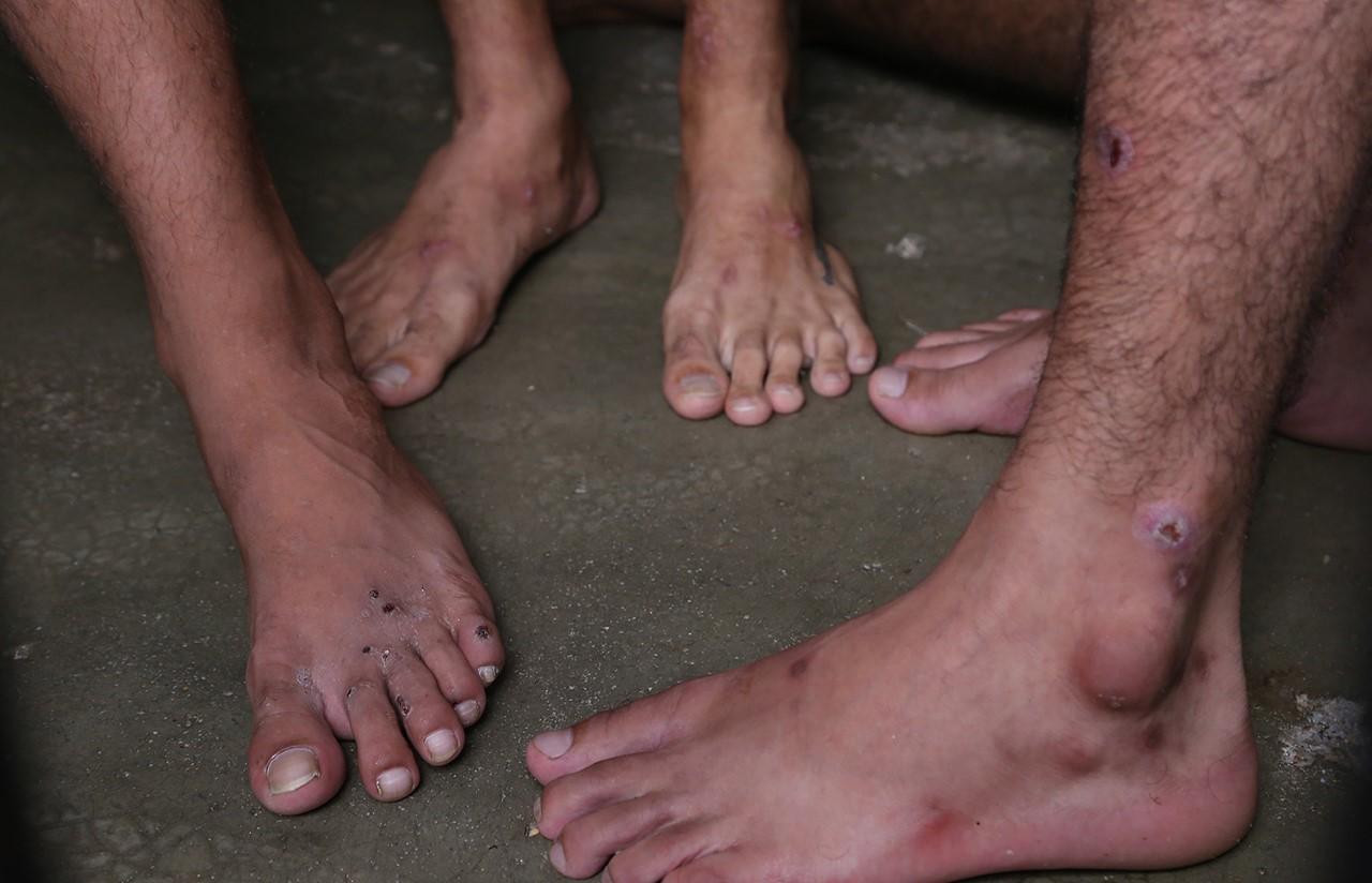 CPP Paraíso do Tocantins: mais de 250 presos estão com sarna