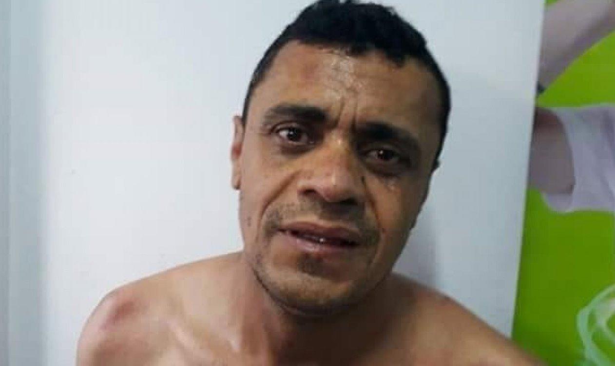 Polícia Federal reforça versão de que agressor de Bolsonaro atuou sozinho