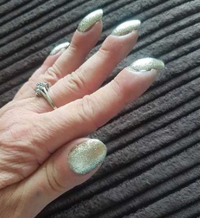 Mulher descobre câncer após postar foto das unhas na internet