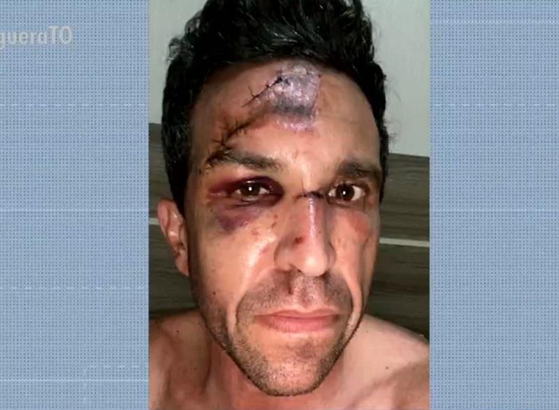 Ciclista fica com rosto desfigurado após cair em buraco coberto pela água em avenida de Palmas