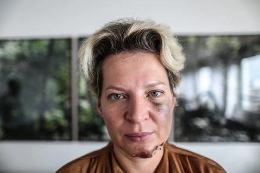 Deputada Joice Hasselmann aparece com machucados no corpo e diz que sofreu atentado