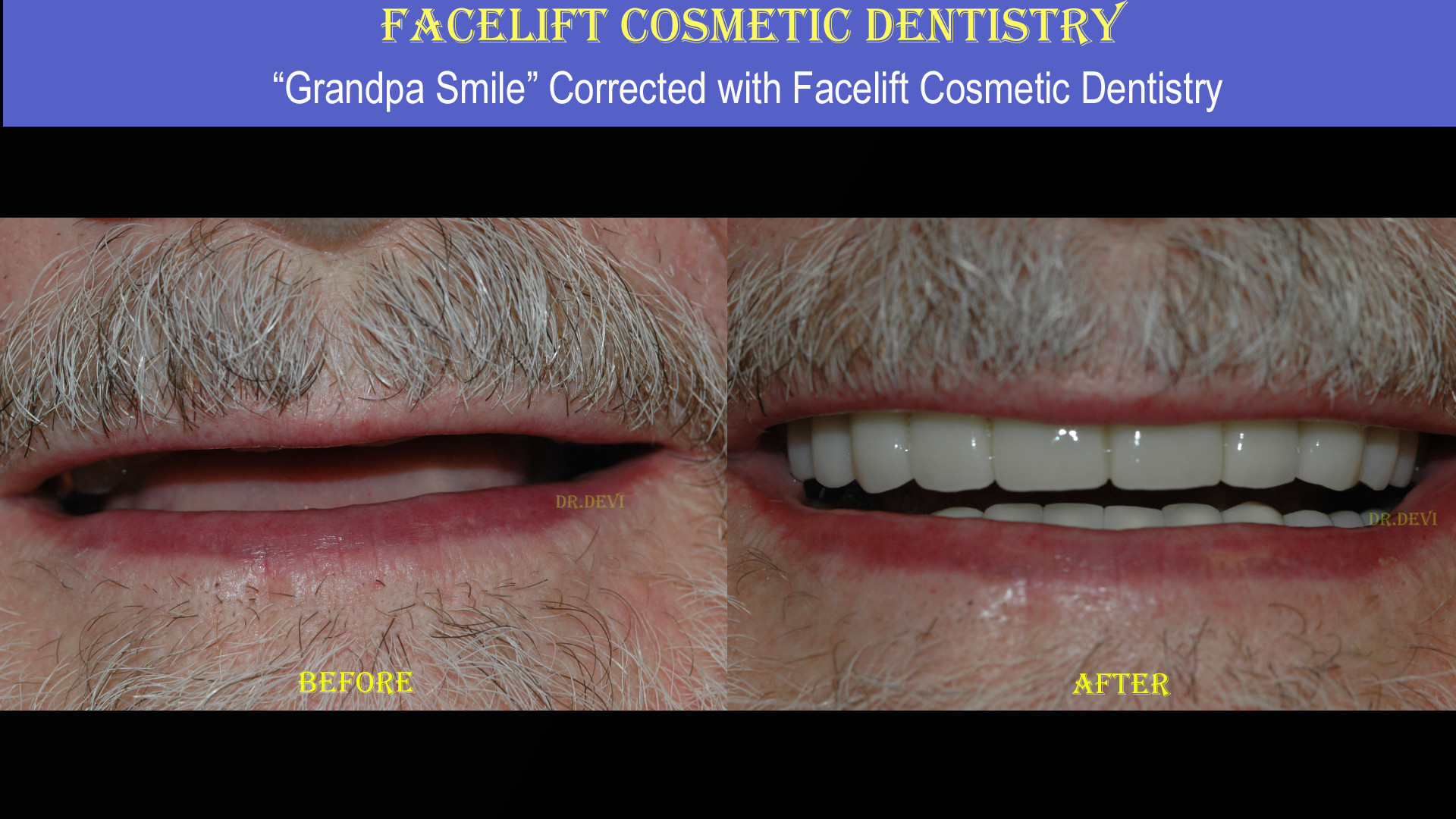 Facelift Cosmetic Dentistry