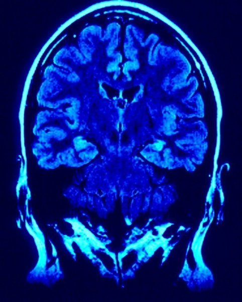 surprisinglives.net/internet-use-brain-damage/