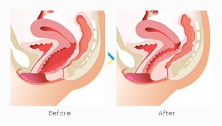 Are keeping the vagina tighter properties leaves