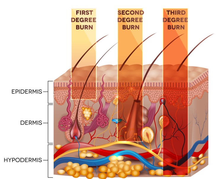 Second-Degree Burn Treatment   How to Treat Burns