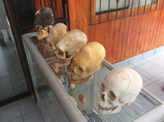 Elongated Skulls-MuseumHistorico