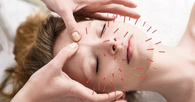 Akupunktur – die Story (I)