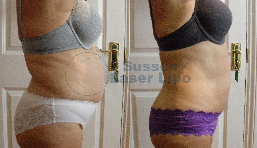 accelerated-laser-lipo-inch-loss-before-and-after-7