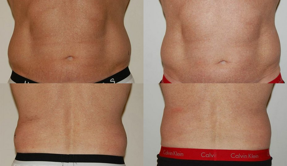 PureCryo-Fat-Freezing-Sussex-Laser-Lipo (3)