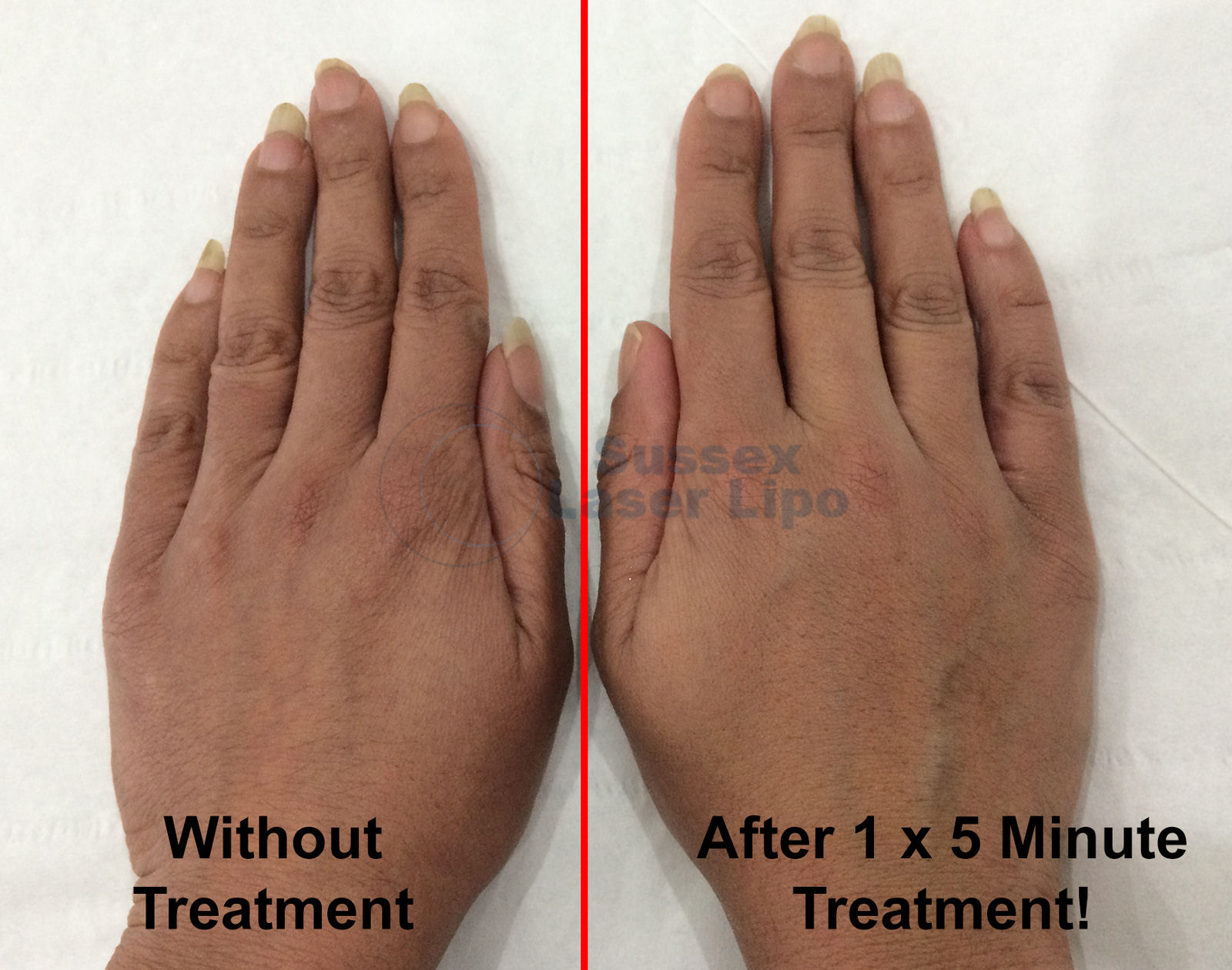 Sussex-Laser-Lipo-anti-aging-hand-treatment-1wm