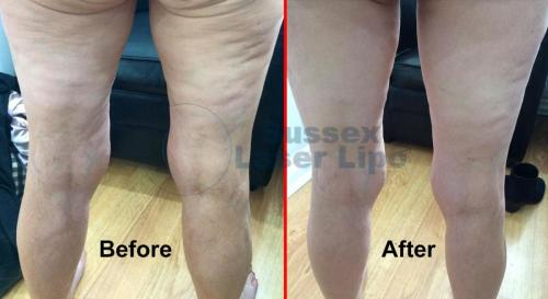 Ultimate Cellulite results 2