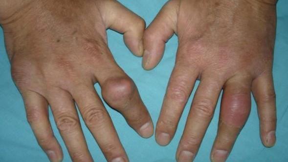 cum să alinați durerea cu o articulație inflamată)