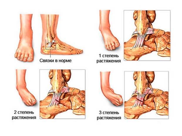 deteriorarea parțială a ligamentelor articulației gleznei stângi)
