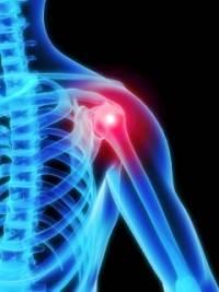 kenőcsök a vállízület ligamentumainak törésére