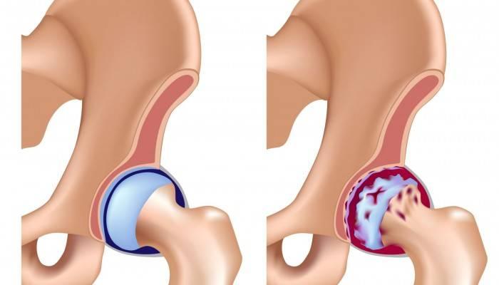 deformálva mindkét csípőízület osteoarthritist)