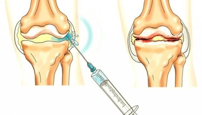 a jobb vállízület kezelésének doa ízületi erózió rheumatoid arthritisben