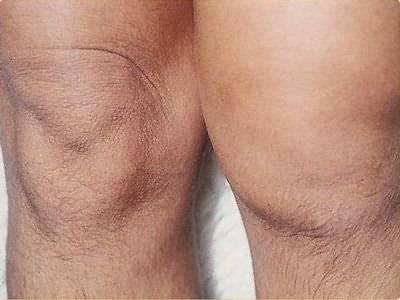 a láb térdízületének duzzanatában