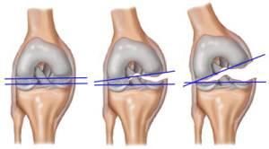 a térd meniszci fáj, hogy mit kell tenni ízületi fájdalom arvi kezeléssel