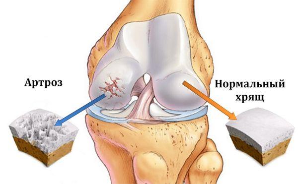 artritis artroza razlika