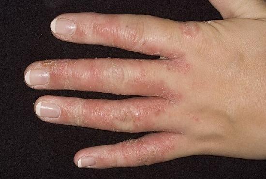 mit kell venni az ujjak artritiszével