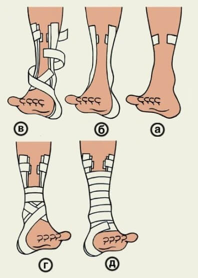 Виды повязок при травмах ключицы. Техника выполнения восьмиобразной повязки на голень и стопу