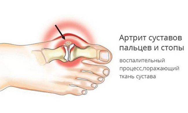 pierde apariția gutatului sfaturi de pierdere a grăsimilor abdomenului