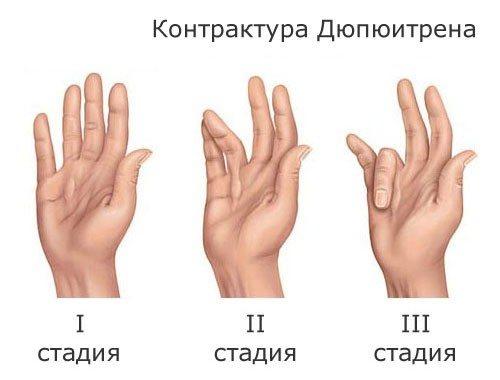 țesut conjunctiv dens al pielii degetului unei persoane ligamentul triunghiular