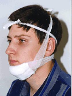 Ушиб челюсти после удара лечение в домашних