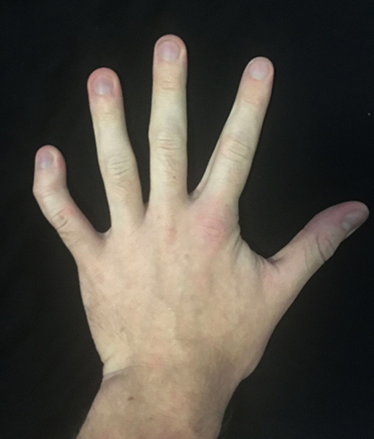 Почему больно сжать пальцы в кулак. Не сгибаются пальцы рук в кулак лечение народными средствами