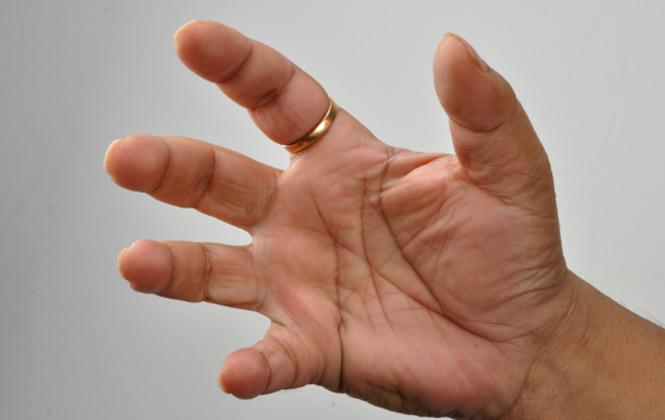 A lábujj diszlokációja: megnyilvánulások és kezelés