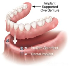 Implant-Supported Overdenture