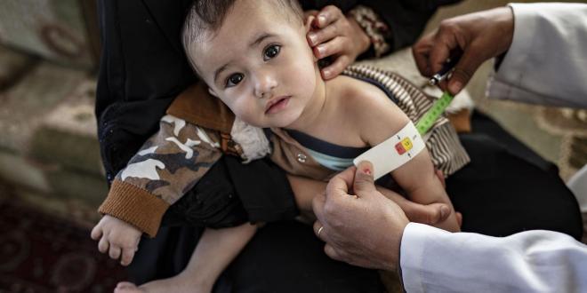 سوء التغذية خطر يهدد حياة الأطفال  ونموهم.!