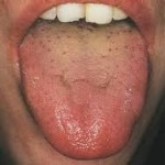 tongue digagnosis