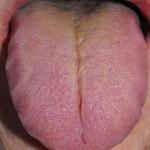 spine tongue toxins colon