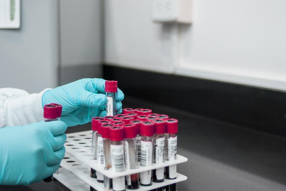 Įvairūs kraujo tyrimai