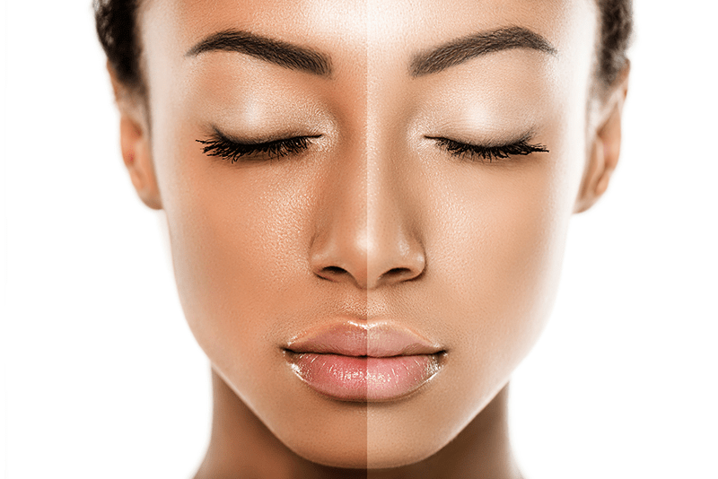 Natural Ways to Lighten Your Skin Without Side Effects