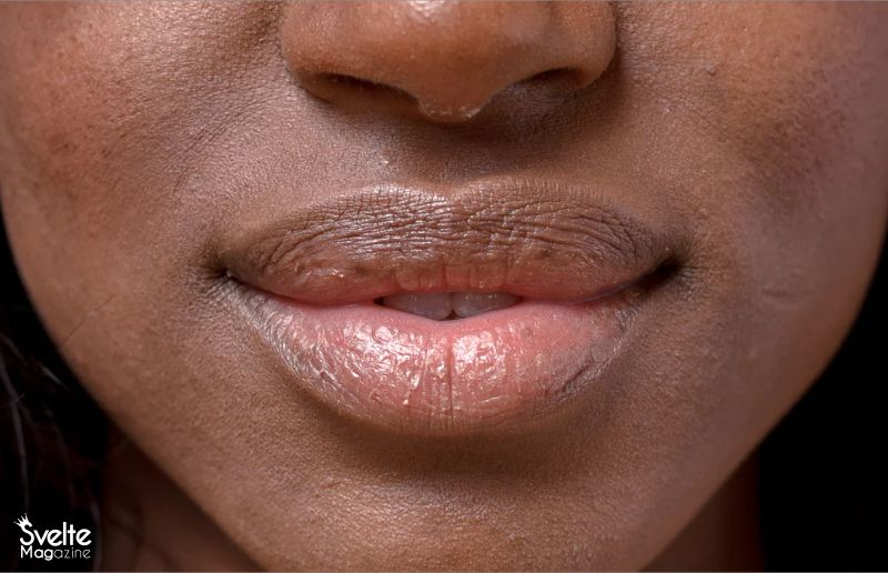 What to Do When Your Lips are Peeling
