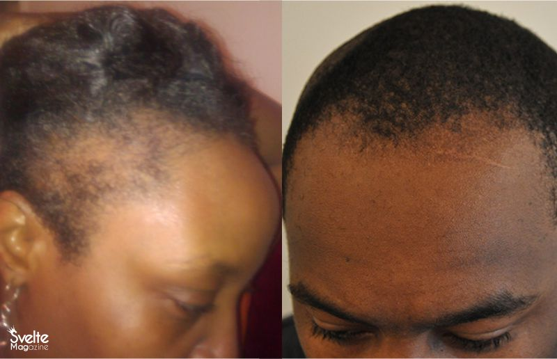 Hair Tips on How to Hide a Receding Hairline