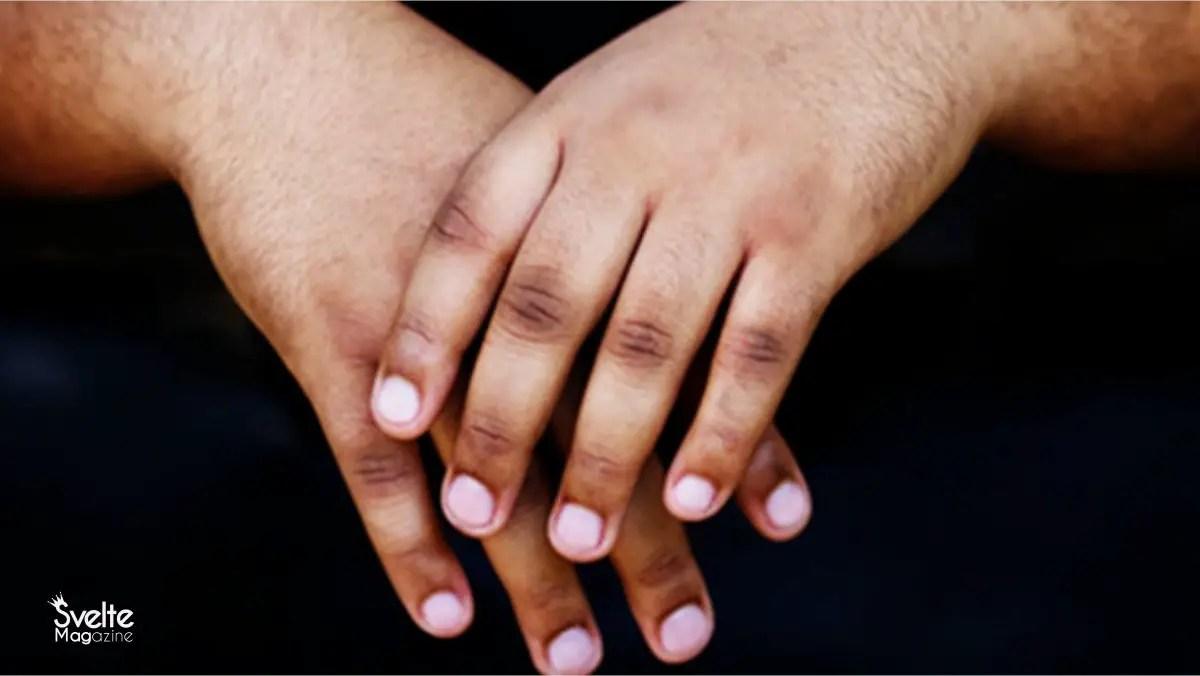 How to Erase Dark Knuckles Forever