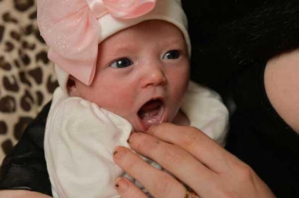новородено-с-две-зъбчета